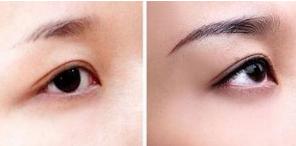 南昌瑞丽眉毛种植案例 从此不用再画眉绣眉了