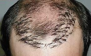 植发需谨慎……植发失败真的是惨不忍睹!这类人群千万不要去植发!