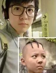 秃顶的人这么多,为什么很少有去做植发的?