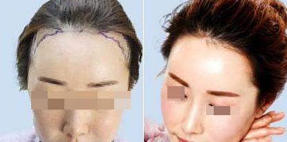 广州植德发际线种植案例 还在为三千发丝而烦恼吗
