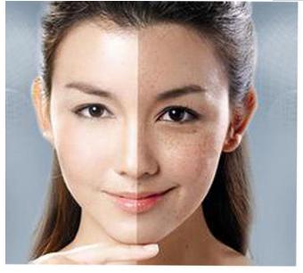 北京第三医院美容中心e光祛斑 不做斑女郎