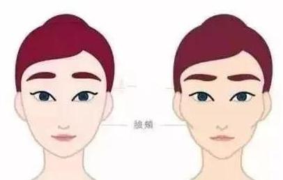 深圳永秀整形医院官网 玻尿酸丰面颊