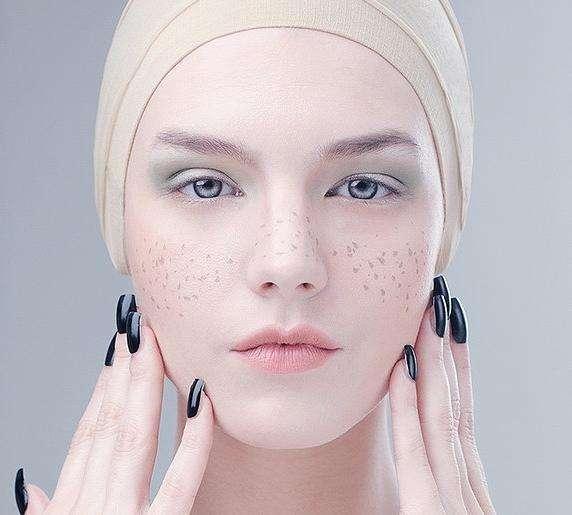 唐山艾丽妮e光祛斑 消除色斑肌肤美美哒