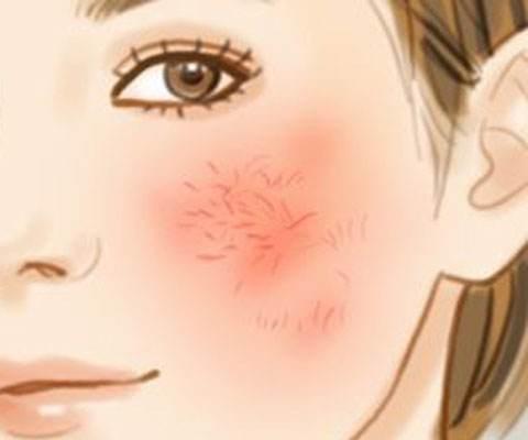 红血丝的成因 激光去红血丝好吗