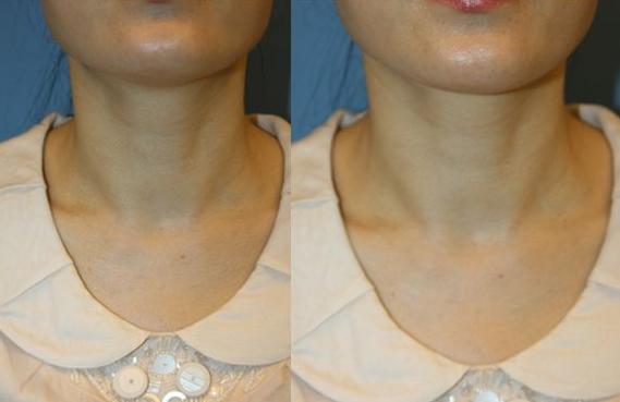 贵阳颈部除皱 让你的年龄成为秘密