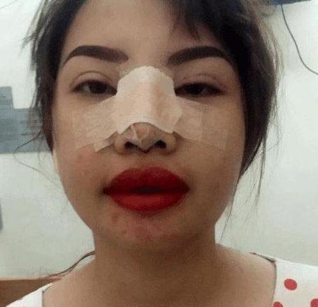 泰国丑女整容全过程图解
