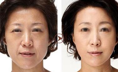 去眼袋领导品牌 广州康华清医学美容抽脂去眼袋