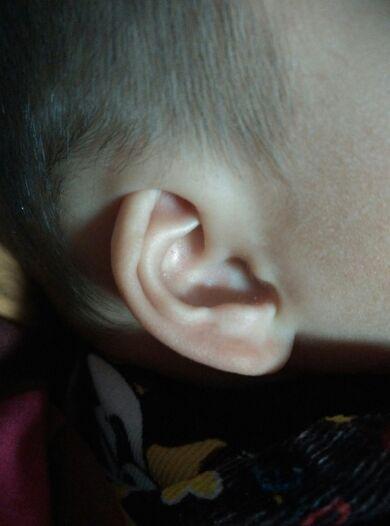 唐山哪家杯状耳矫正好 这些矫正方法你都了解吗
