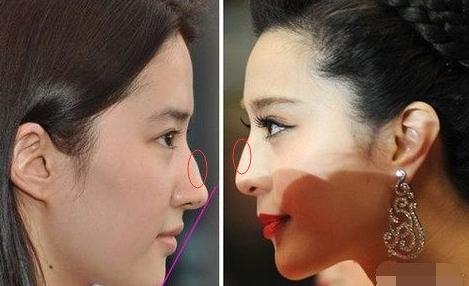 你是驼峰鼻吗 需要矫正吗