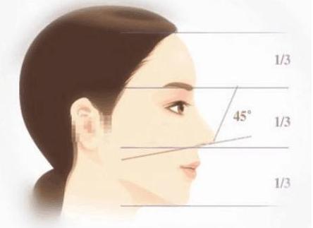 朝天鼻的怎么形成的 如何矫正