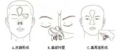 鼻再造术流程是怎么的 注意点有哪些