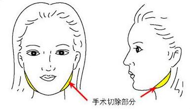 切除突出的下颌角  瘦成瓜子脸