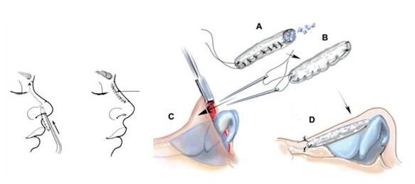 玻尿酸注射隆鼻  安全实效快