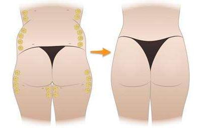 臀部扁平  有哪些丰臀术可以让你拥有丰满臀部