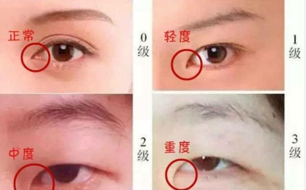 广州曙光整形做双眼皮有哪些优势 开眼角适合什么人群