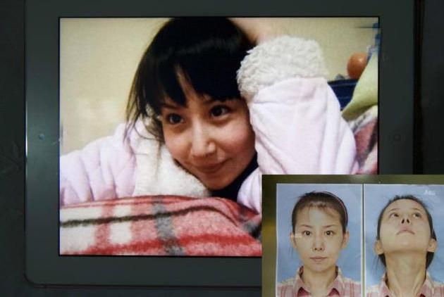"""中国女孩花费7万元赴韩国整容,整容失败后变成""""马脸"""""""