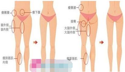 终于找到快速不反弹的瘦腿术  吸脂瘦大腿