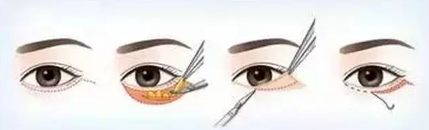 该如何选择祛眼袋的方法 哪种方法更适合自己