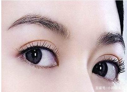 郑州帝尔美整形激光去黑眼圈 约3~5个疗程即可见效
