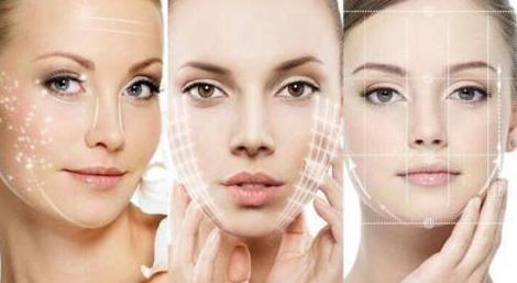 面部提升最好的方法埋线提升  让年龄一直是个秘密