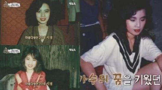 韩国女星韩慧景去世 生前曾注射食用油整容