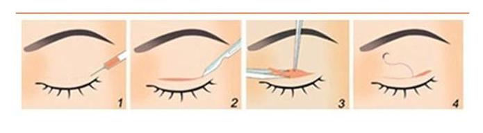 切开双眼皮   如何护理是重点