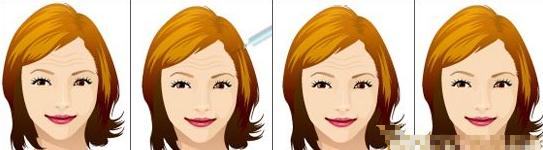 抬头老十岁  哪种抬头纹去除术更好