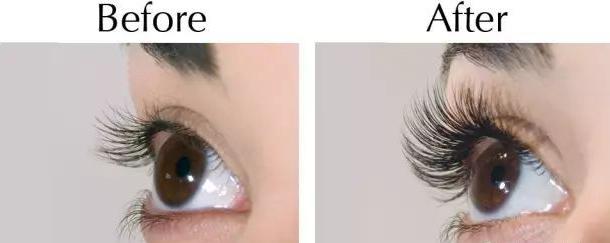 这么多危害 睫毛种植真的能做吗
