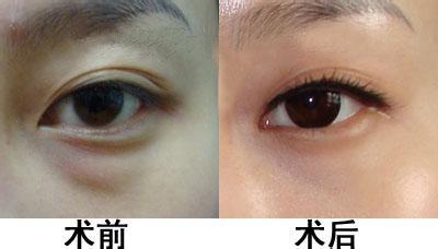 广州阿玛施眼科医院专家建议 眼袋严重者尽快治疗