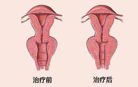 阴道松弛怎么办  选择韩式无痕阴道紧缩术,紧紧地抓住你的