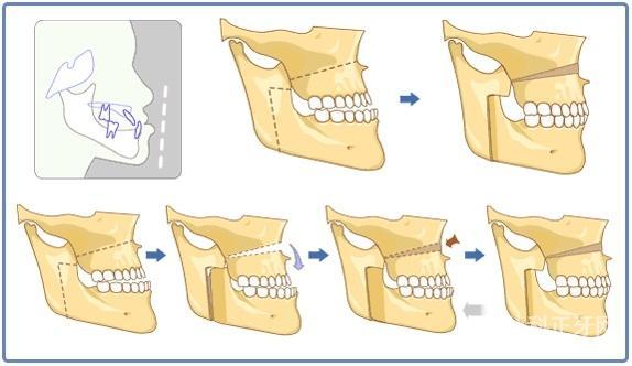 地包天矫正方法有哪些 手术能维持多久