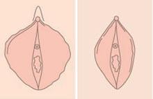 阴唇肥大怎么办 有哪些方法可以治疗