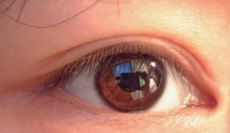 九江瑞丽双眼皮专家哪个专业 万成专家讲解韩式三点定位