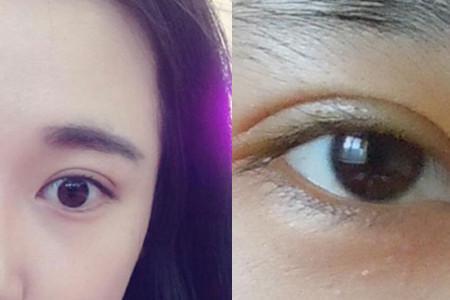 上海法思荟医疗整形切开双眼皮 技术高超避免重复手术