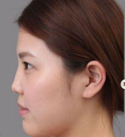西安丰庆路美立方美容院做玻尿酸隆鼻 我觉得做得特别成功