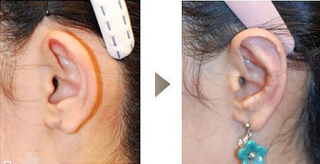 切除副耳安全吗 副耳切除术安全快速还孩子完美耳型