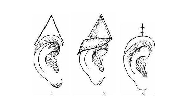 隐耳矫正术能矫正隐耳吗 隐耳矫正让你隐形的耳朵露出来