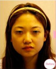 博爱激光美容专家傅文凤激光美白案例 附上对比图
