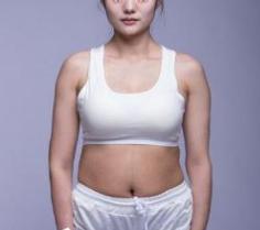 小肚囊变身小蛮腰 说说我在北京丽都整形吸脂的经历