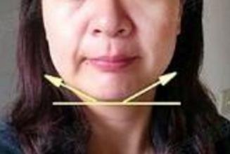40岁除皱案例分享 推荐岳阳爱思特激光美容仪 心动不如行动