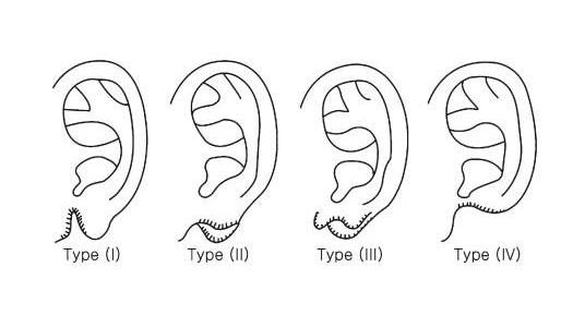 耳垂畸形遮遮掩掩不敢带耳饰怎么办 耳垂畸形矫正一次搞定