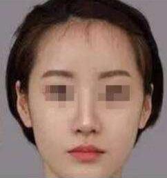 常熟瑞丽整形医院玻尿酸隆鼻效果好  让我成为亚洲高鼻梁
