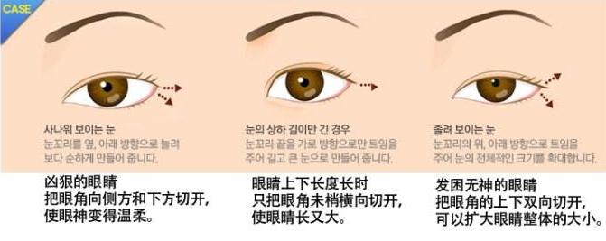 邯郸爱眼医院割双眼皮效果好 正规整形医院值得信赖