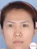 合肥红妆做的鼻孔缩小术 让我的猪鼻子消失了