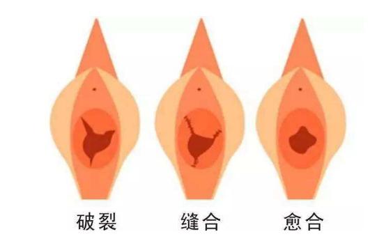 邯郸李婷整形外科医院处女膜修复技术好吗 价格贵吗