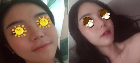 邯郸现代丽人医院整形美容医院自体脂肪隆鼻安全吗 会痛吗