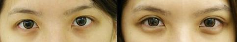 割双眼皮哪家好 温州鹿城韩美医疗美容整形医院成就女主梦