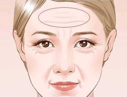 海南瑞韩整形激光祛抬头纹效果怎么样 哪个医生权威