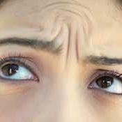 海南韩美医学美容医院激光去川字纹 效果可保持稳定2~3年