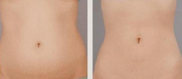 汉中仁爱(韩美)整形美容医院水动力吸脂瘦腰腹部不反弹